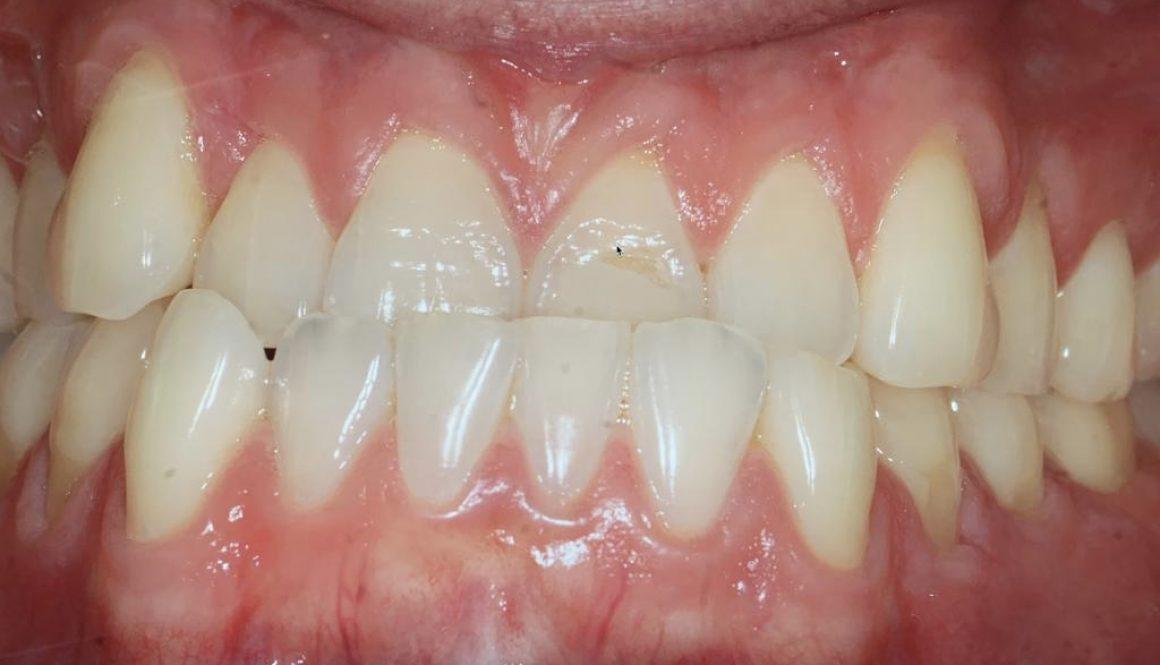 Class 3 before orthodontics