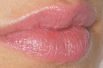 Lip sculpting and defining