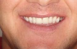 Smile Make Over