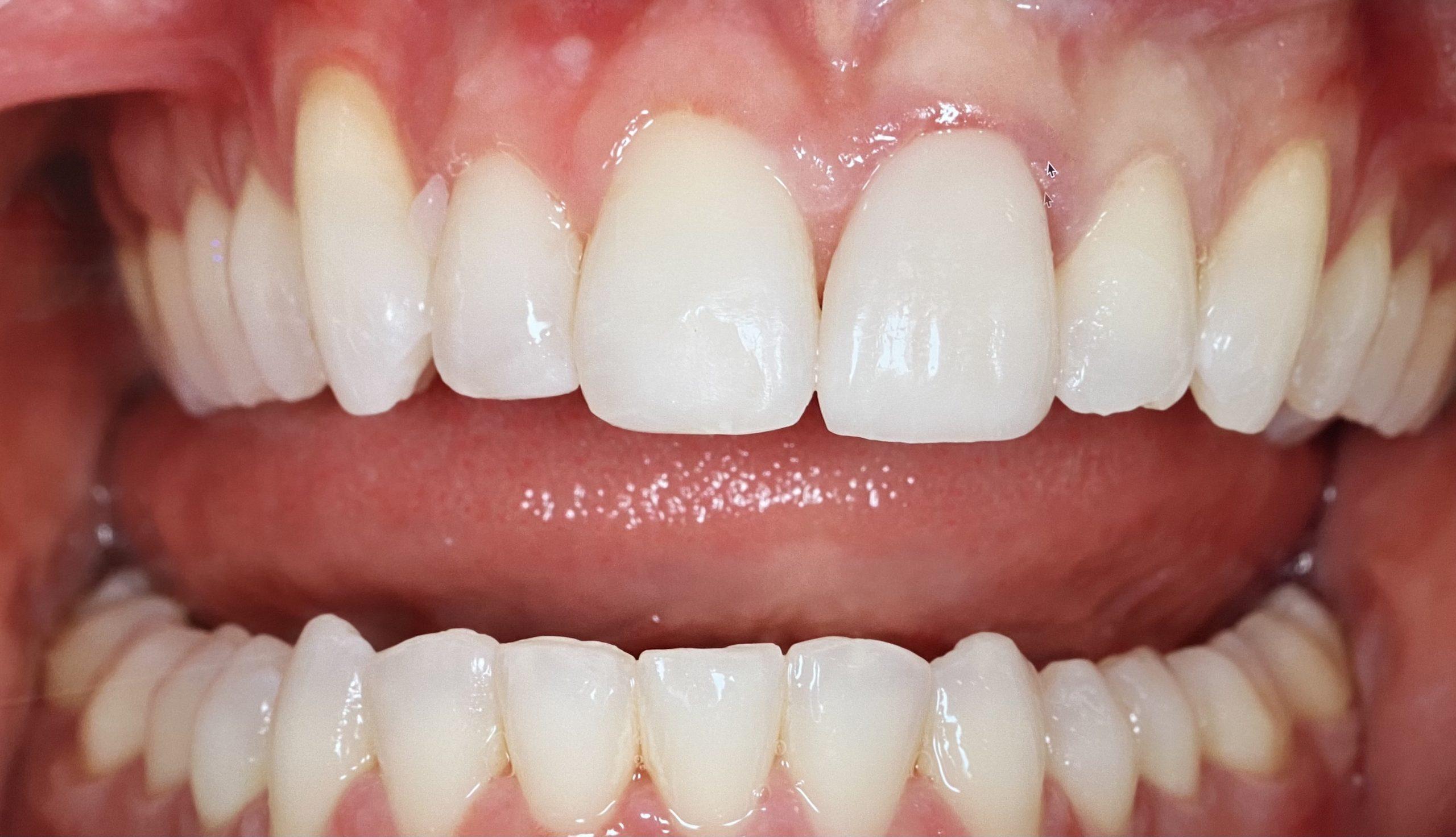 fixed braces