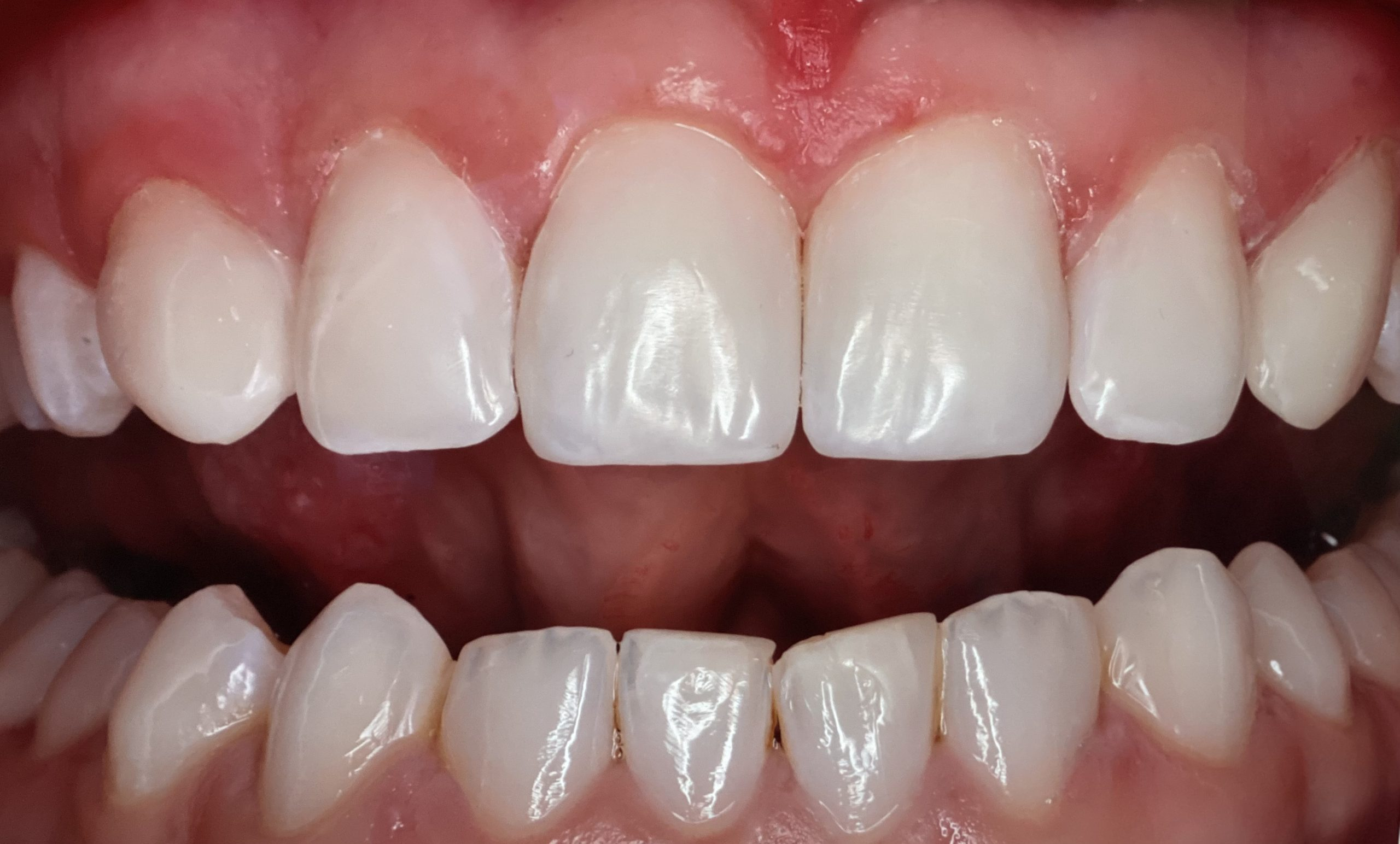 composite bonding before and after