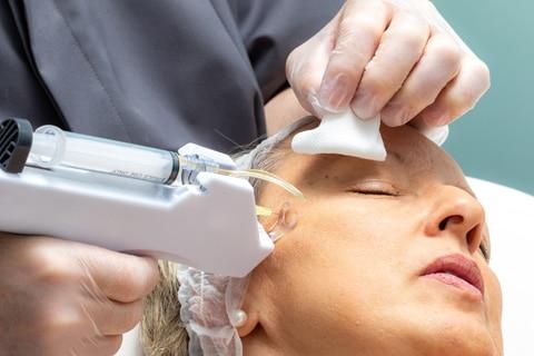 Nano Plasma Treatment