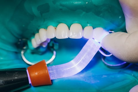 Composite Bonding Treatment